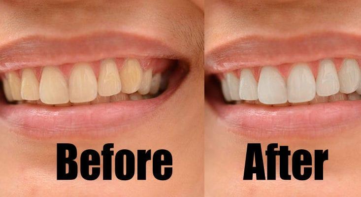 How To Whiten Teeth Using Photoshop Tutorial
